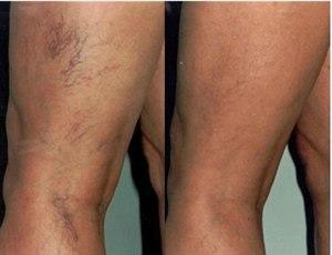 """Удаление лазером """"сосудистых звездочек"""" на ногах (фото: до и после)"""
