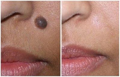 Лазерное удаление родинок, бородавок (фото: до и после)