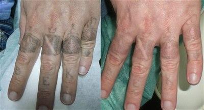 Лазерное удаление татуировок (фото: до и после)