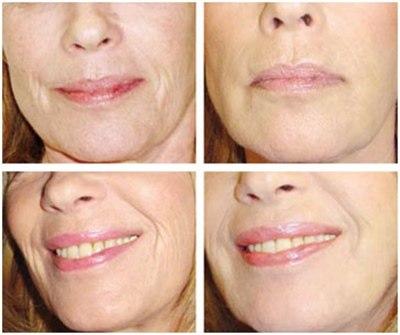 Ревитализация лица гиалуроновой кислотой (фото: до и после)