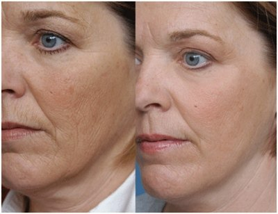 Плазмолифтинг лица (фото: до и после)