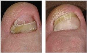 Лечение грибка ногтей на ногах (фото: до и после)