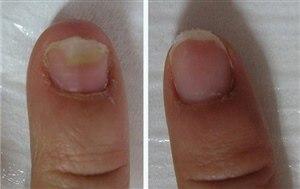 Лечение грибка ногтей на руках (фото: до и после)