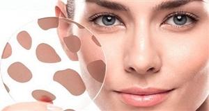 Гиперпигментация. Возрастные пигментные пятна, темные пятна на лице, руках и др. участках тела