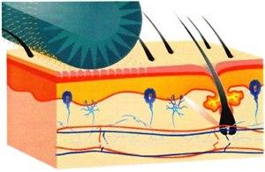 Дермароллер (микронидлинг) для коррекции атрофических рубцов