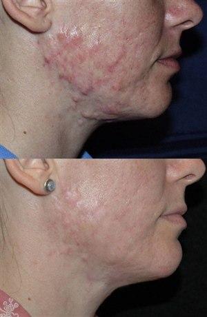 Химический пилинг для удаления шрамов