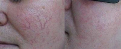 Лазерное удаление сосудов на лице (фото: до и после)